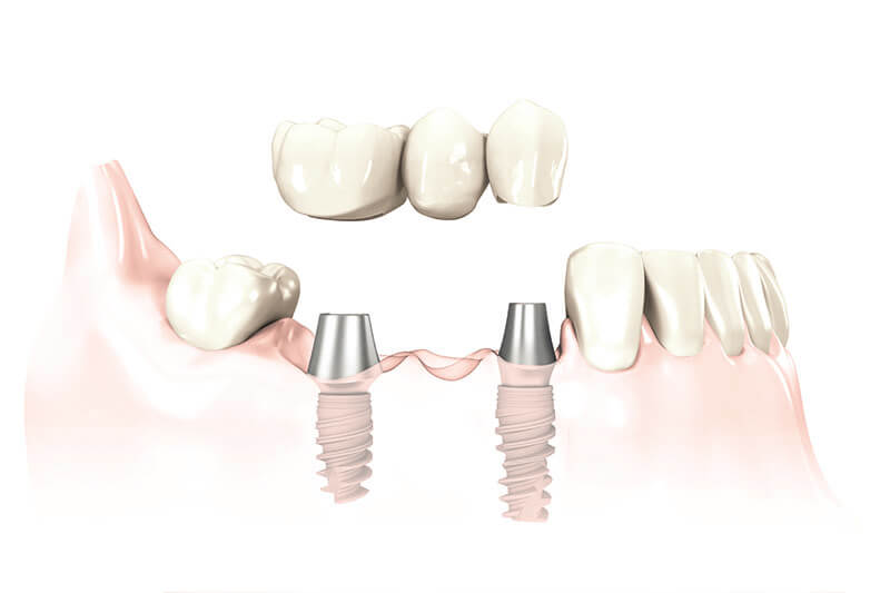 Implant Supported Bridges in Fairfield, CT