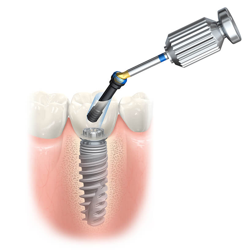 Dental Implant Placement in Fairfield, CT