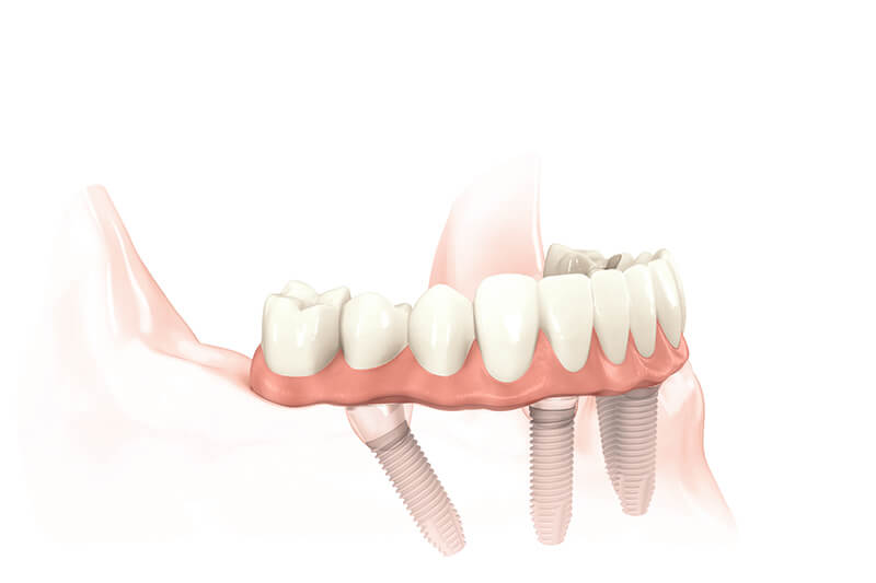 Implant Supported Dentures in Fairfield, CT