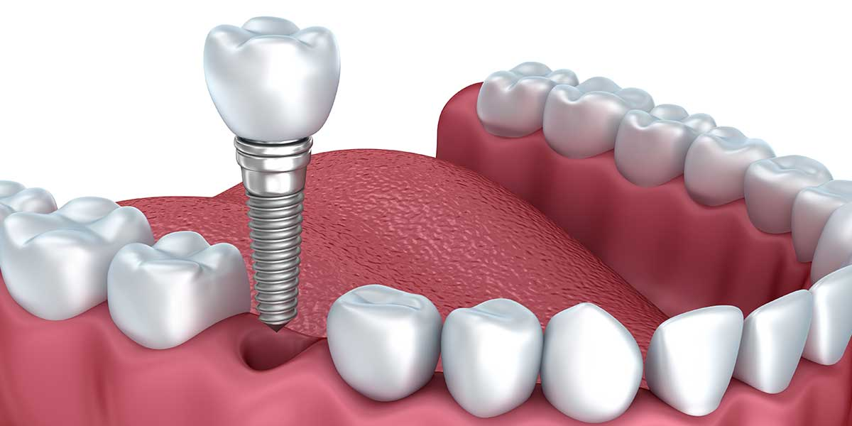 Single Dental Implants in Fairfield, CT