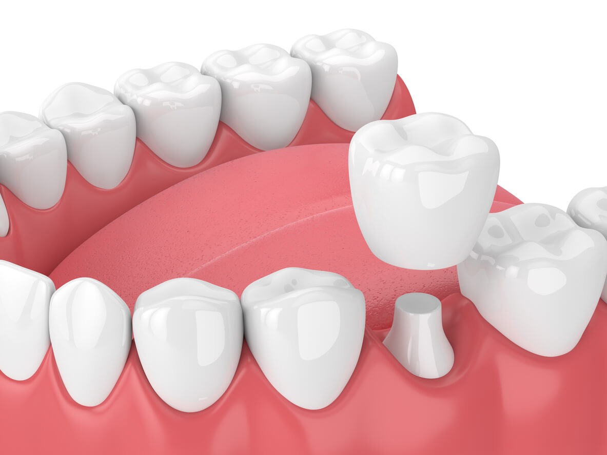 3D Render Of Dental Crown