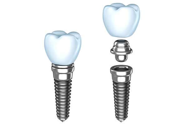 Single Dental Implants in Fairfield, CT